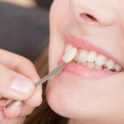 Veneers — Your Solution For A Better Smile   Shinagawa Dental Blog
