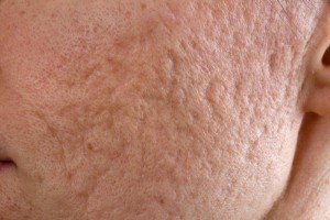 Deep Acne Scars