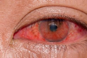 Abnormal blood vessel growth