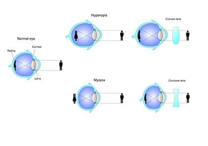 Particular Eye Conditions Philippines