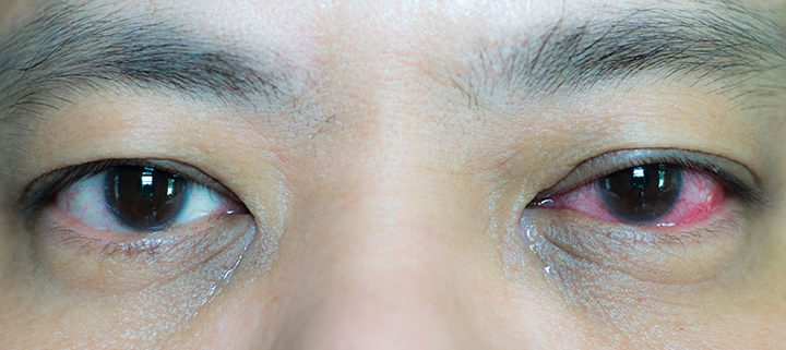 Causes of Red Eyes