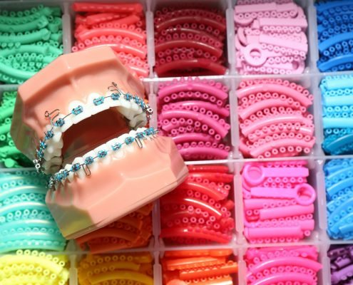 Rubber Colors for Braces