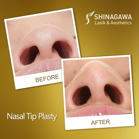 Nasal Tip Plasty at Shinagawa Lasik & Aesthetics Philippines