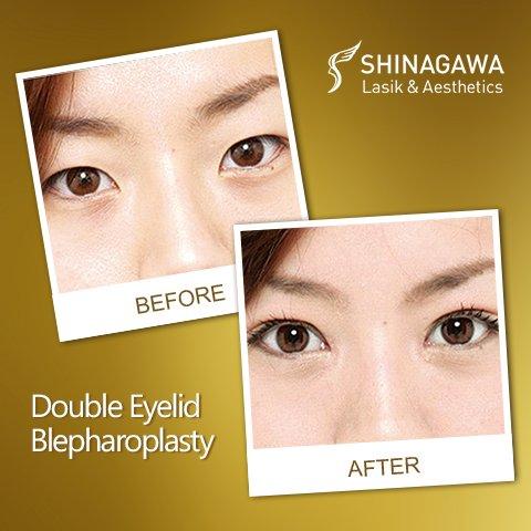 Double Eyelid Blepharoplasty