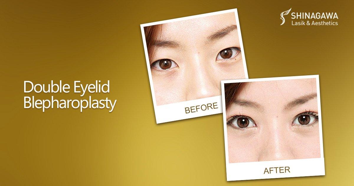 Double Eyelid Blepharoplasty   Promos & Offers