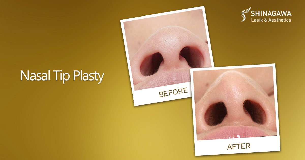 The Dose For Your Nose Nasal Tip Plasty   Promos & Offers