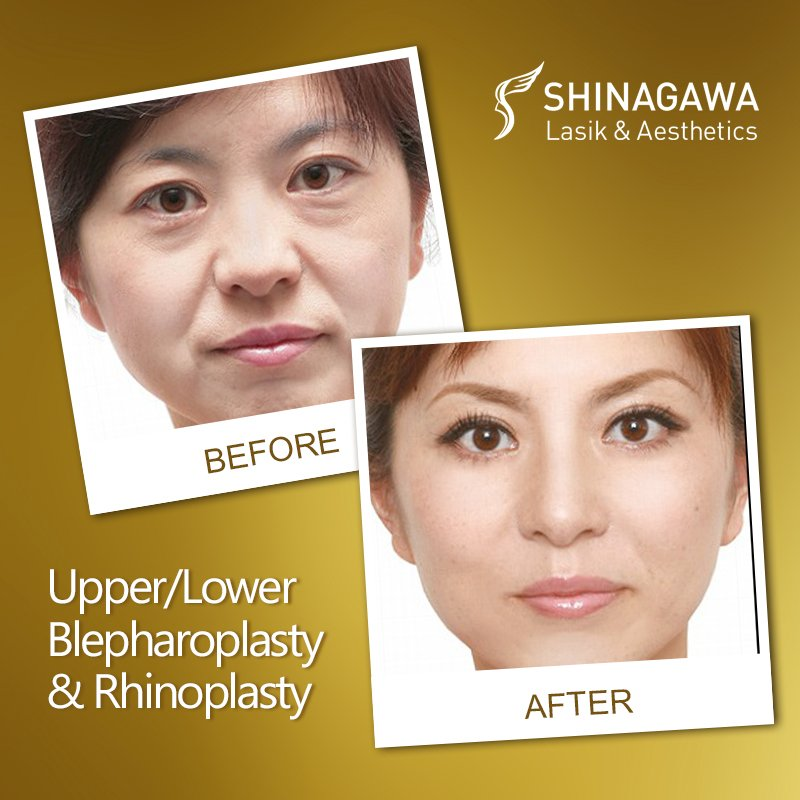 Upper/Lower Blepharoplasty and Rhinoplasty