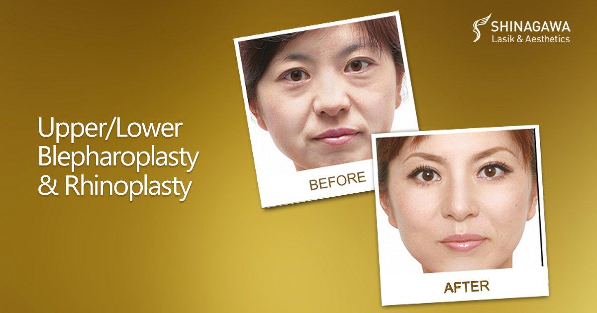 UpperLower Blepharoplasty and Rhinoplasty   Promos & Offers