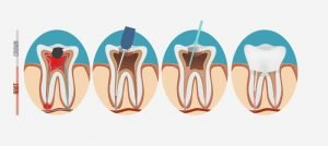Save Your Tooth through Root Canal Treatment