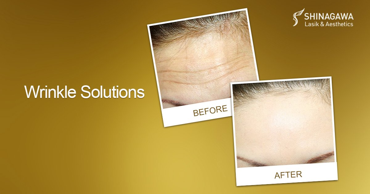 Wrinkle Solutions: Botulinum Toxin for Facial Wrinkles   Promos & Offers