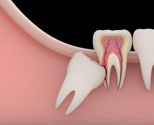 Impacted Tooth 2 | Shinagawa Orthodontics