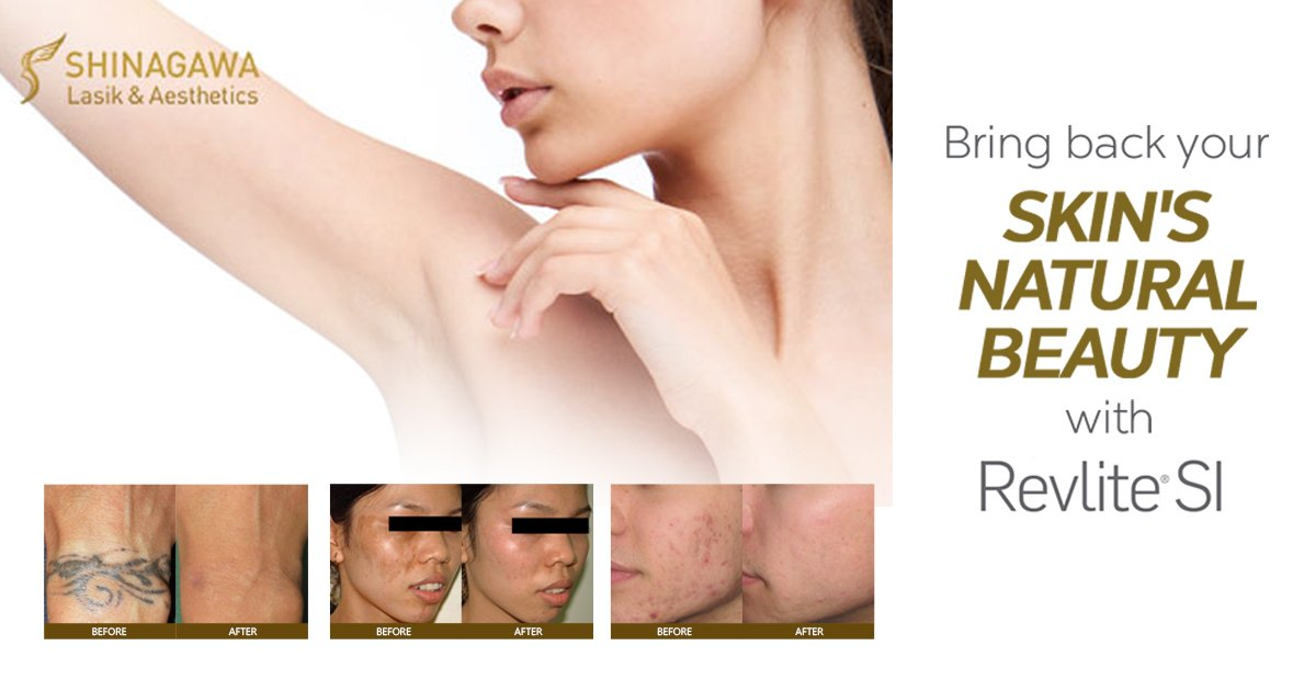 Revolutionary Skin Treatments with RevLite SI   Promos & Offers