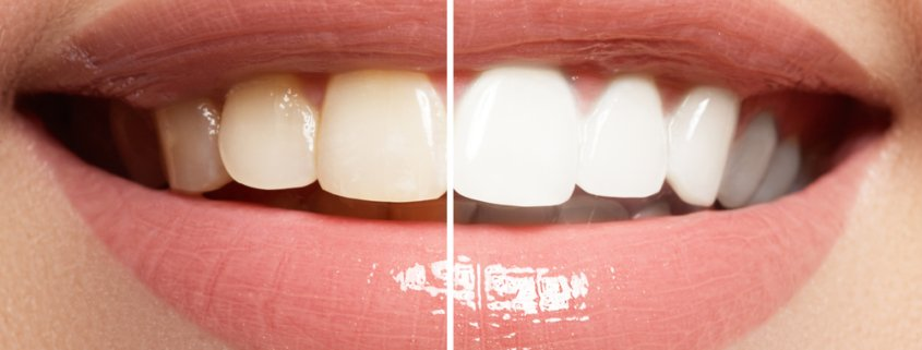 What You Need To Know About Teeth Whitening | Shinagawa Dental Care