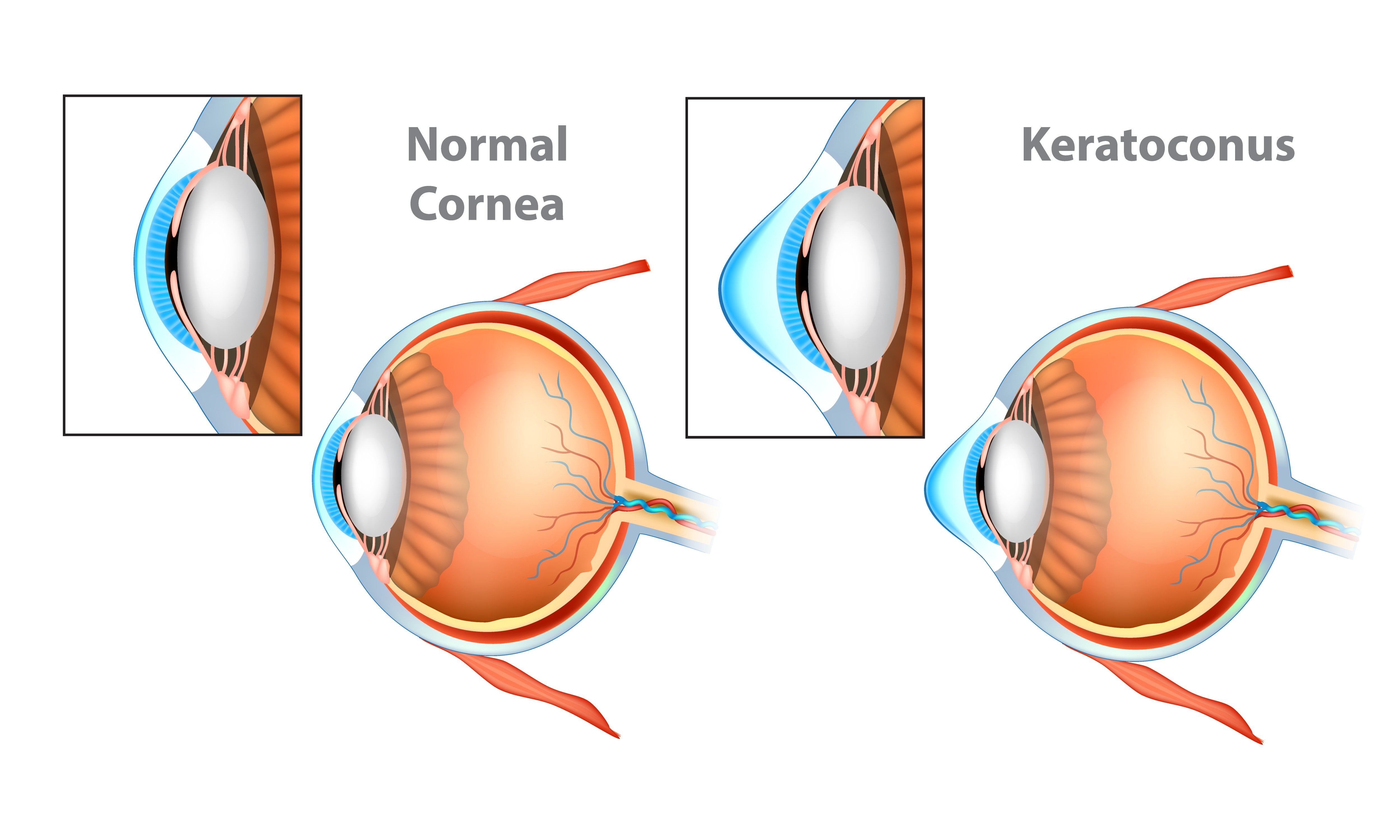Ways To Take Care of Cornea | Shinagawa LASIK Blog