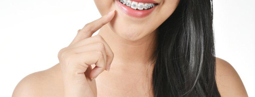 Health Benefits Of Having Braces | Shinagawa Dental Blog