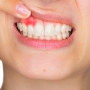 Knowing Gum Disease Better | Shinagawa Dental Blog