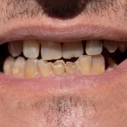 Difference Between A Chipped Tooth And Cracked Tooth | Shinagawa Dental Blog