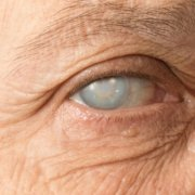 Problems Faced By People With Cataract | Shinagawa Cataract Blog