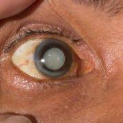 Slowing Down Cataract Progression   Shinagawa Cataract Blog