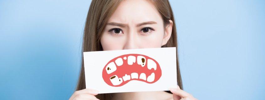 Assessing Risk Of Tooth Decay | Shinagawa Dental Blog