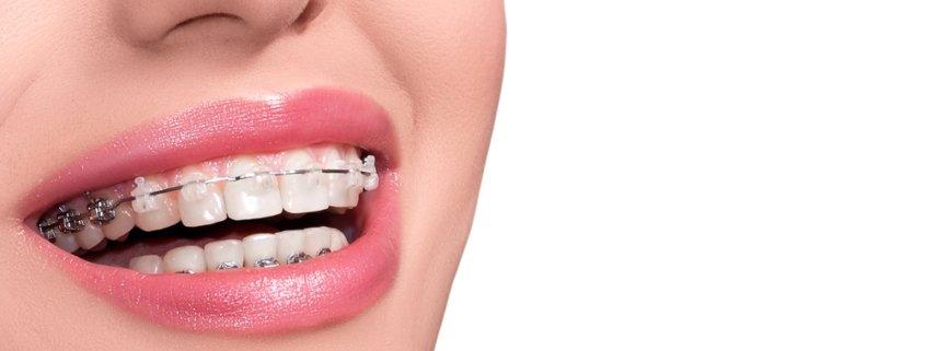 The Magic Of Orthodontics | Shinagawa Blog