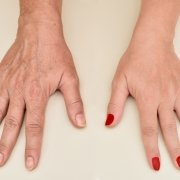 Hand Rejuvenation & ShrinkAge For Your Dry Hands | Shinagawa Blog
