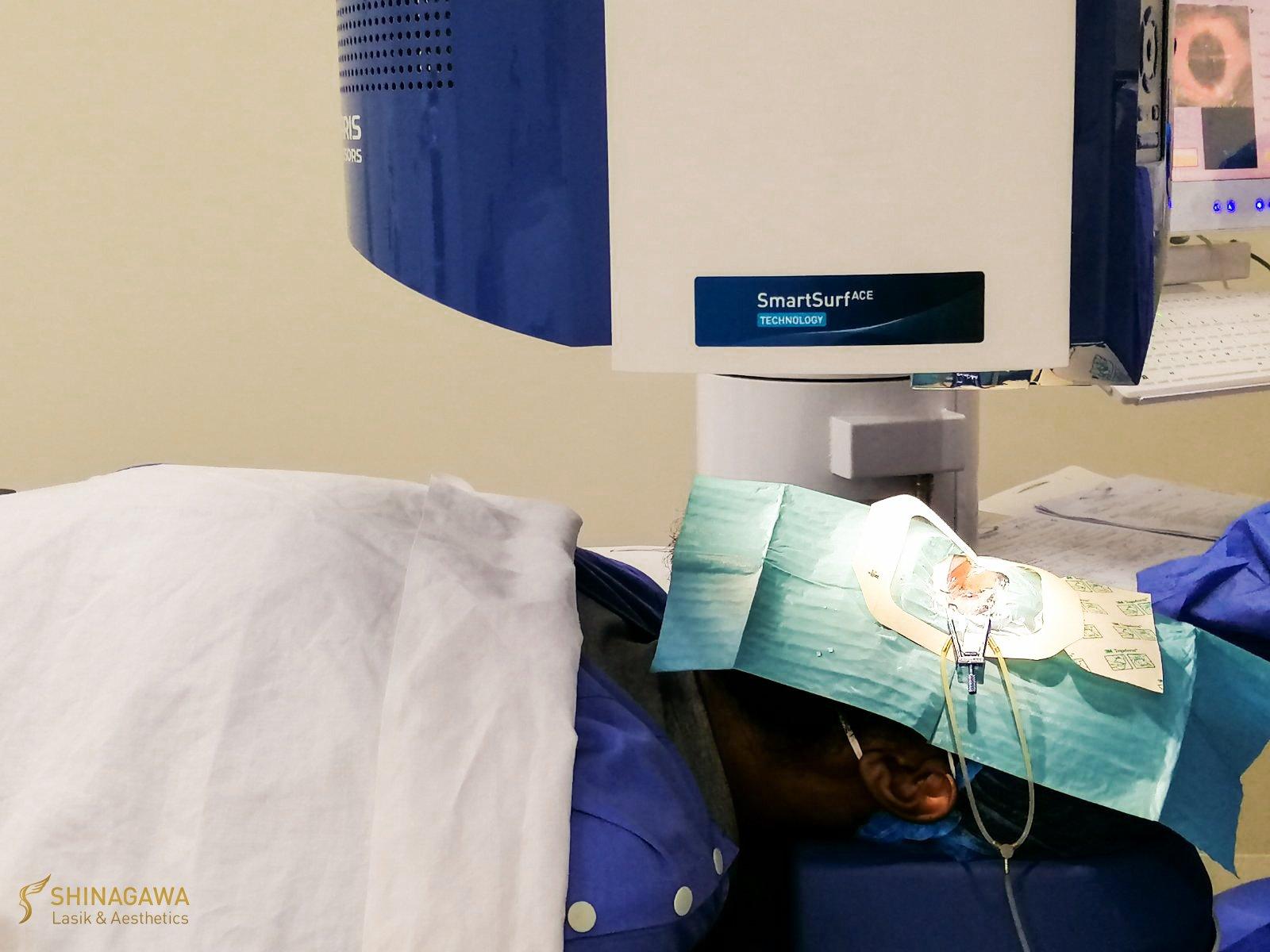 Mo Tautuaa's ULTRA LASIK Surgery at Shinagawa Lasik Center BGC