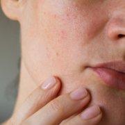 Did Quarantine Give You Acne And Dry Skin? | Shinagawa Blog