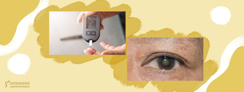 Facts About Diabetes And Your Eyes | Shinagawa Blog