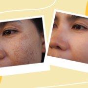 How Can We Fade Acne Scars & Hyperpigmentation? | Shinagawa Blog
