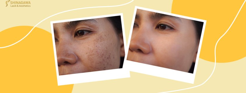 How Can We Fade Acne Scars & Hyperpigmentation? | Shinagawa Blog