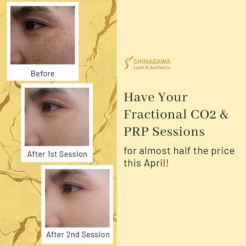 Fractional CO2 & PRP Sessions For Almost Half The Price | Promos & Offers