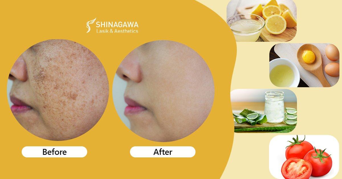 How To Treat Dark Spots At Home   Shinagawa Blog