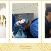 June Mar Fajardo's LASIK | Shinagawa Feature Story