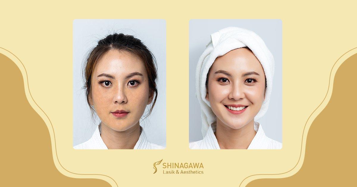 Worried About Hyperpigmentation?   Shinagawa Blog